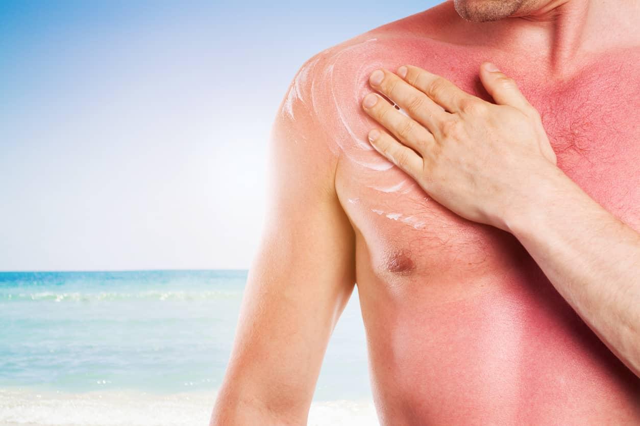 estética para hombres exposición solar